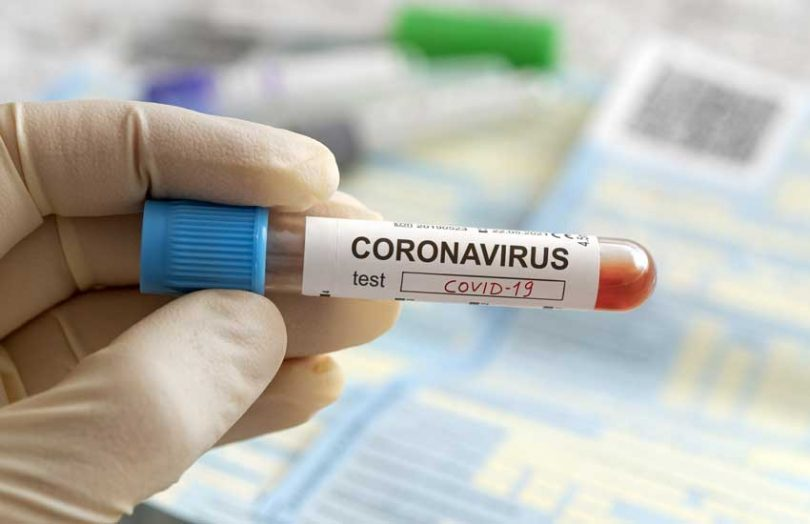 coronavirus test covid-19