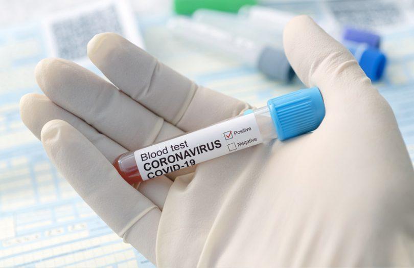 coronavirus covid19 immunity test