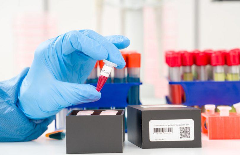 covid 19 coronavirus testing