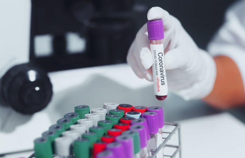 covid 19 test coronavirus